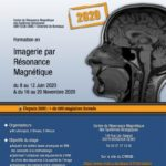Stage IRM 2020 (Bordeaux)